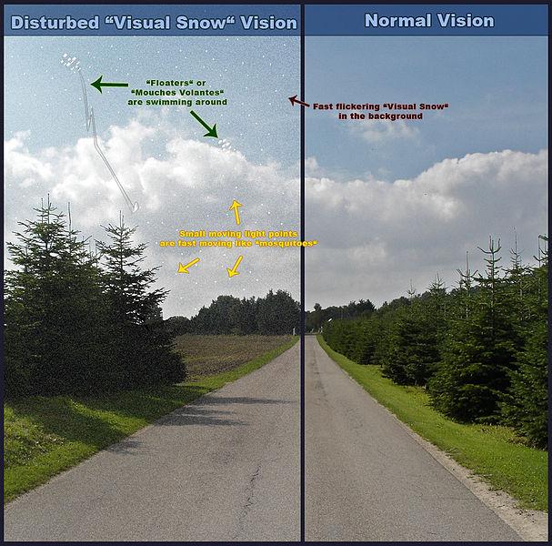 Oogruis   Visual snow en floaters